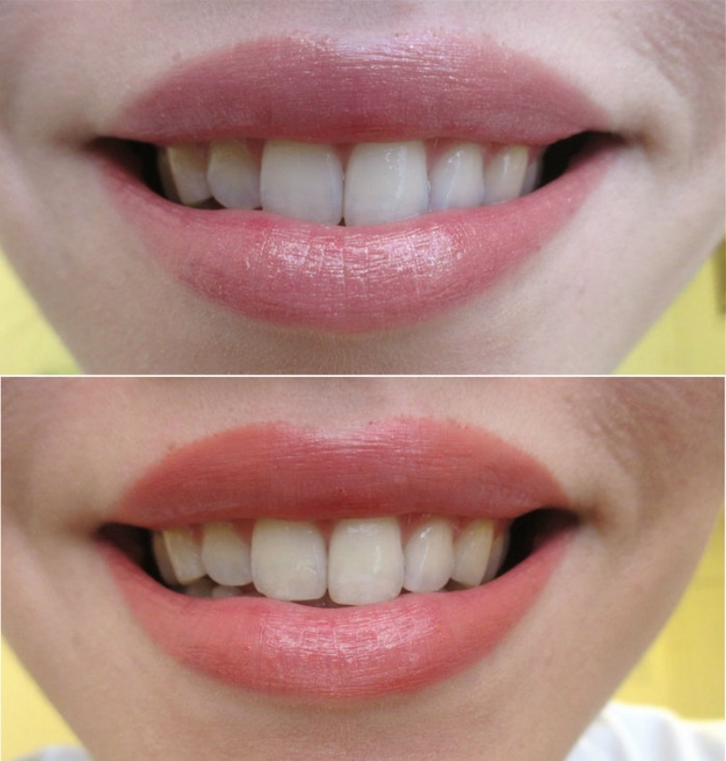 Best lipstick colours that will make your teeth look whiter