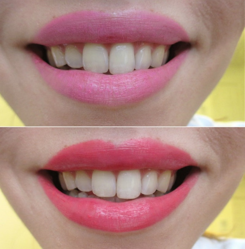 Which Lipstick Colors Will Make Your Teeth Look Whiter?