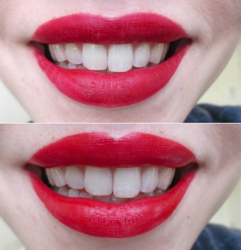 Which Lipstick Colours are Designed to make my Teeth