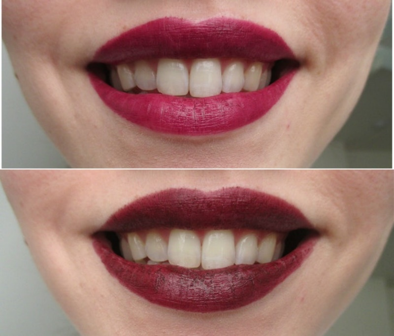 Lipstick To Make Your Teeth Look Whiter